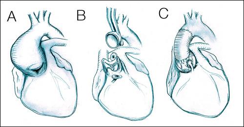 Aortenklappenrekonstruktion